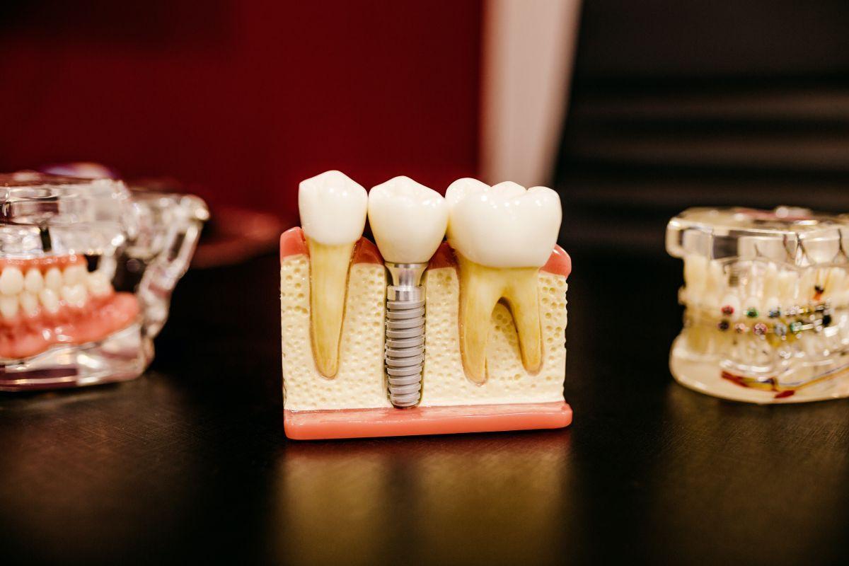 resorbable membranes dental